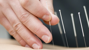 Initial Acupuncture – 90min